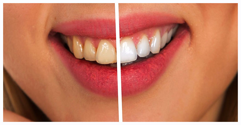 Diamondsmile Teeth Whitening System Reviews